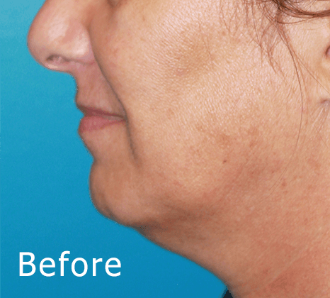 Chin Augmentation | Buckhead Plastic Surgery In Atlanta, GA