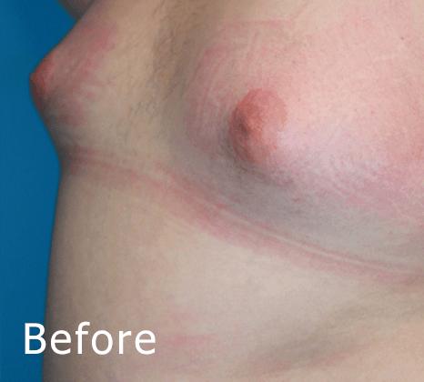 Breast Reduction | Buckhead Plastic Surgery In Atlanta, GA