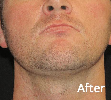 Face Tite | Buckhead Plastic Surgery In Atlanta, GA