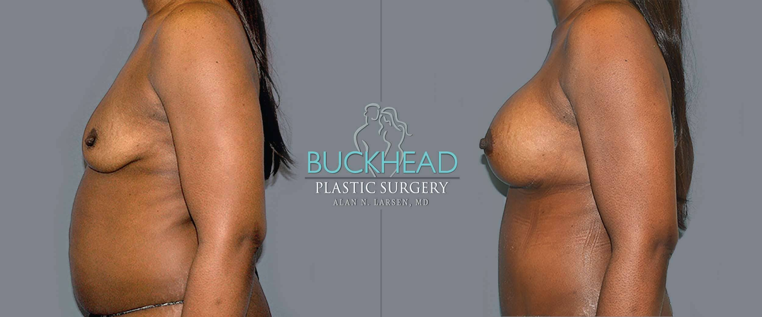 Before and After Photo gallery | Breast Augmentation | Buckhead Plastic Surgery | Board-Certified Plastic Surgeon in Atlanta GA