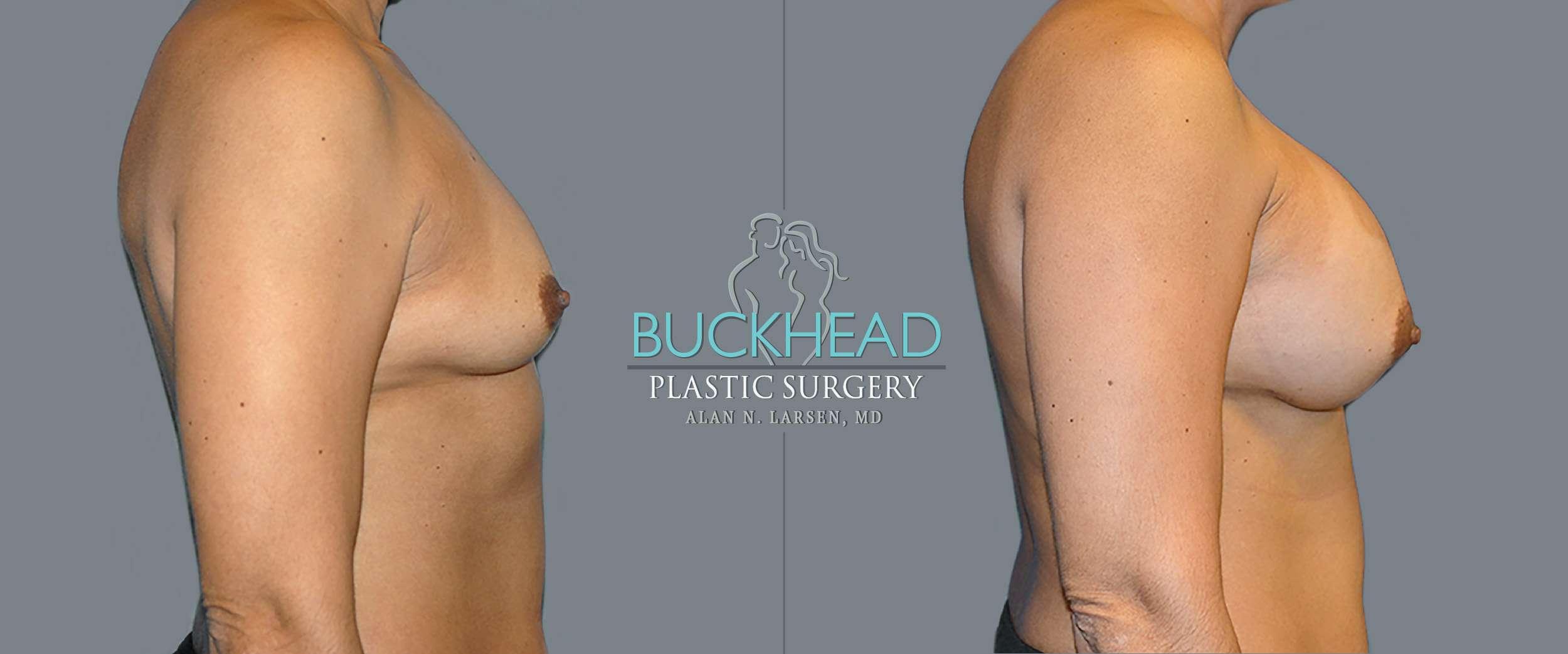 Before and After Photo Gallery | Breast Augmentation | Buckhead Plastic Surgery | Alan N. Larsen, MD | Board-Certified Plastic Surgeon in Atlanta GA