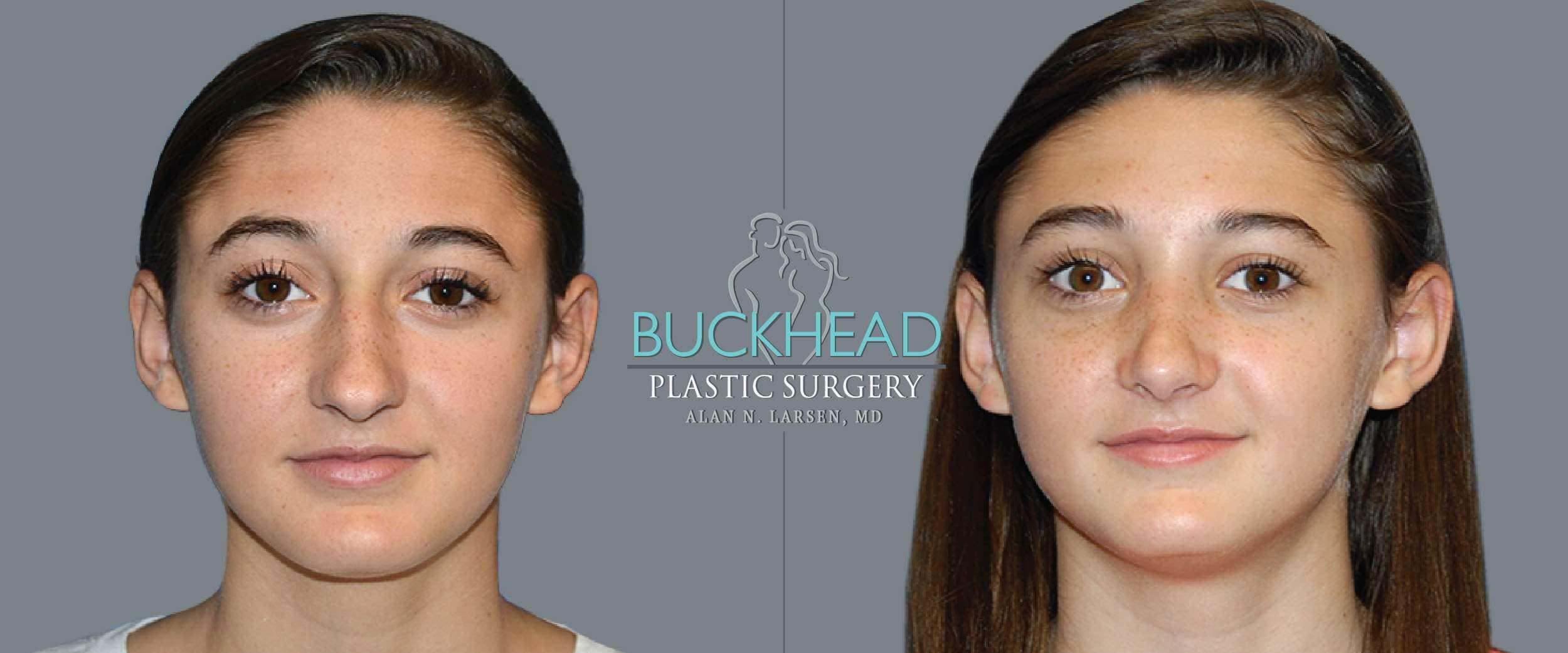 Before and After Photo gallery | Rhinoplasty | Buckhead Plastic Surgery | Board-Certified Plastic Surgeon in Atlanta GA