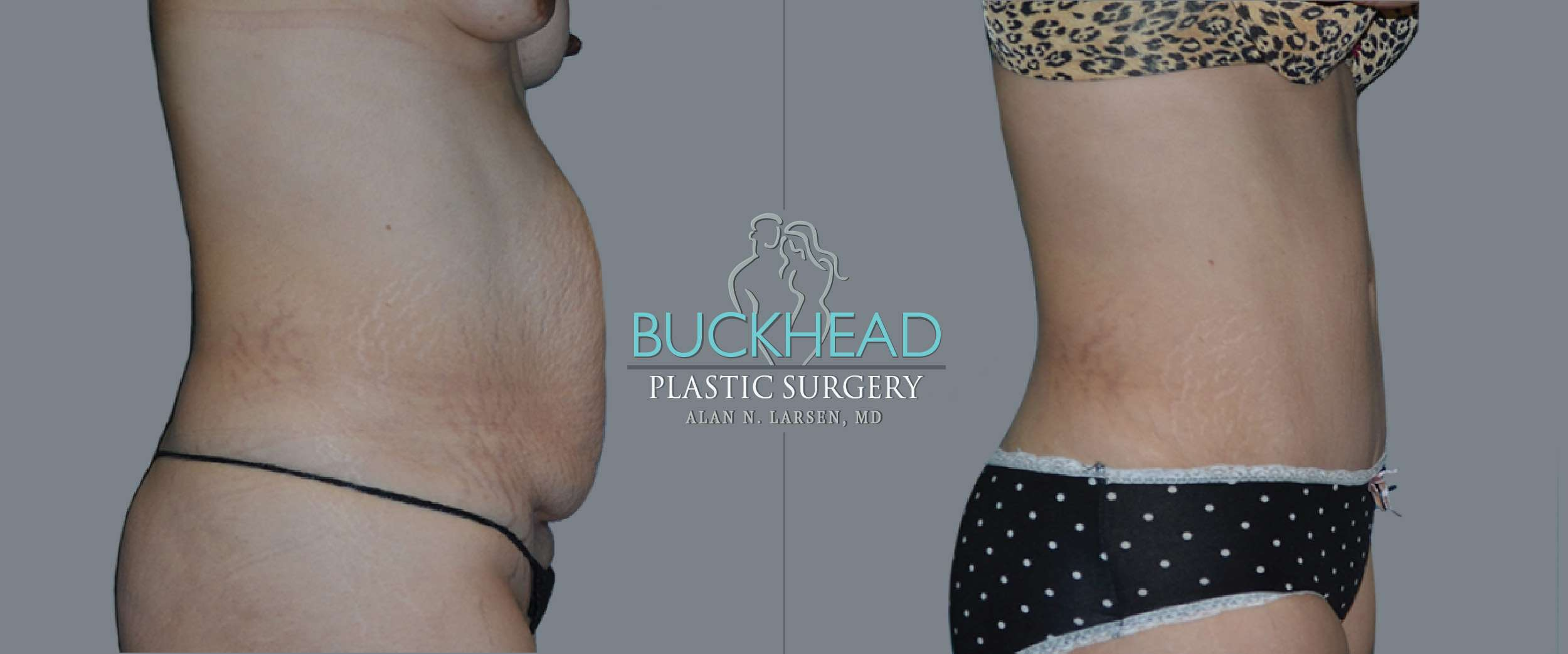 Before and After Photo gallery   Tummy Tuck   Buckhead Plastic Surgery   Board-Certified Plastic Surgeon in Atlanta GA
