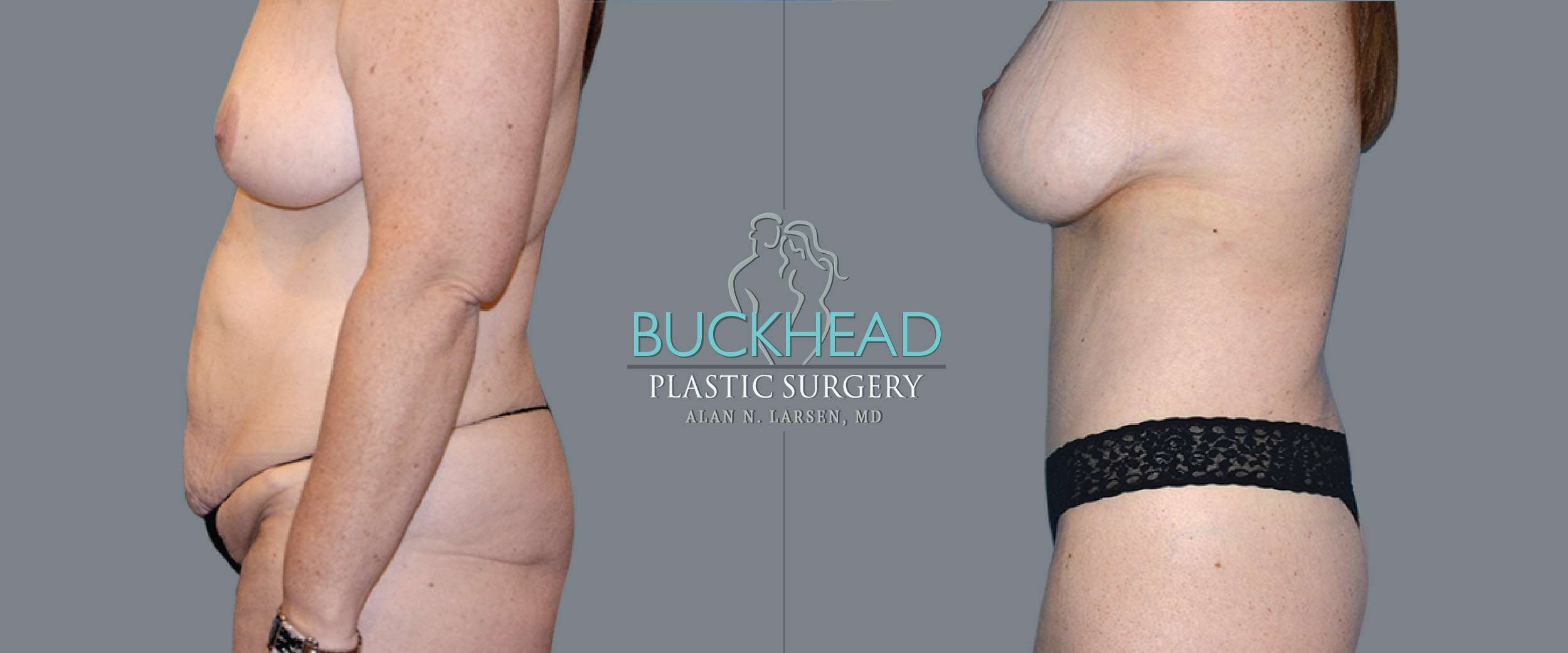 Before and After Photo gallery | Body Lift | Buckhead Plastic Surgery | Board-Certified Plastic Surgeon in Atlanta GA