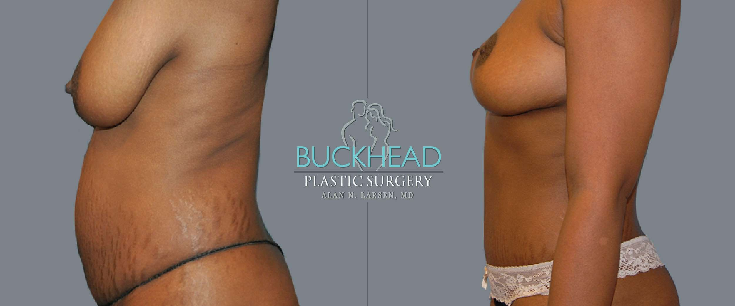 Before and After Photo gallery | Tummy Tuck | Buckhead Plastic Surgery | Board-Certified Plastic Surgeon in Atlanta GA