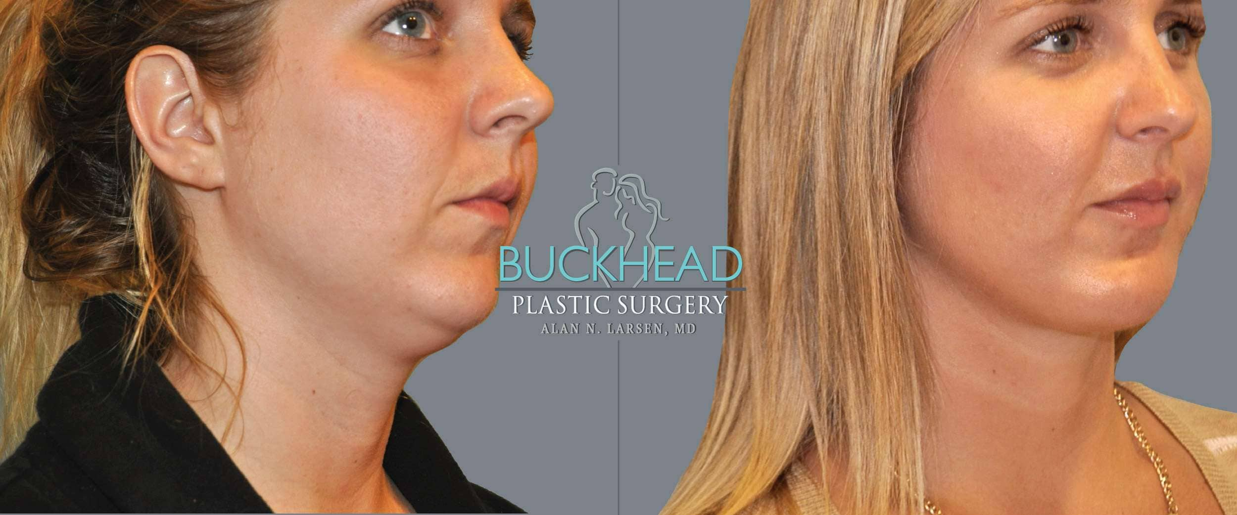 Before and After Photo Gallery | Liposuction - Neck | Buckhead Plastic Surgery | Alan N. Larsen, MD | Board-Certified Plastic Surgeon | Atlanta GA