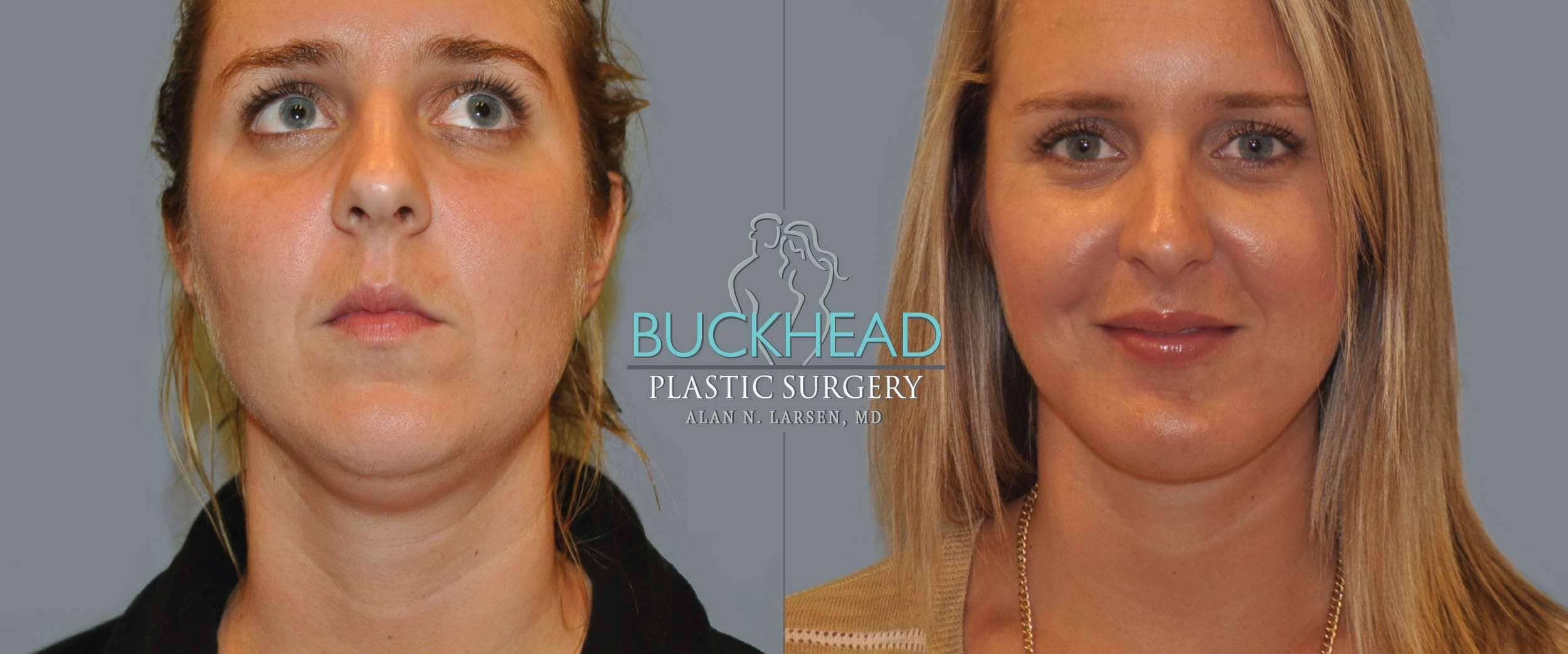 Before and After Photo Gallery | Liposuction - Neck | Buckhead Plastic Surgery | Alan N. Larsen, MD | Board-Certified Plastic Surgeon | Atlanta GA