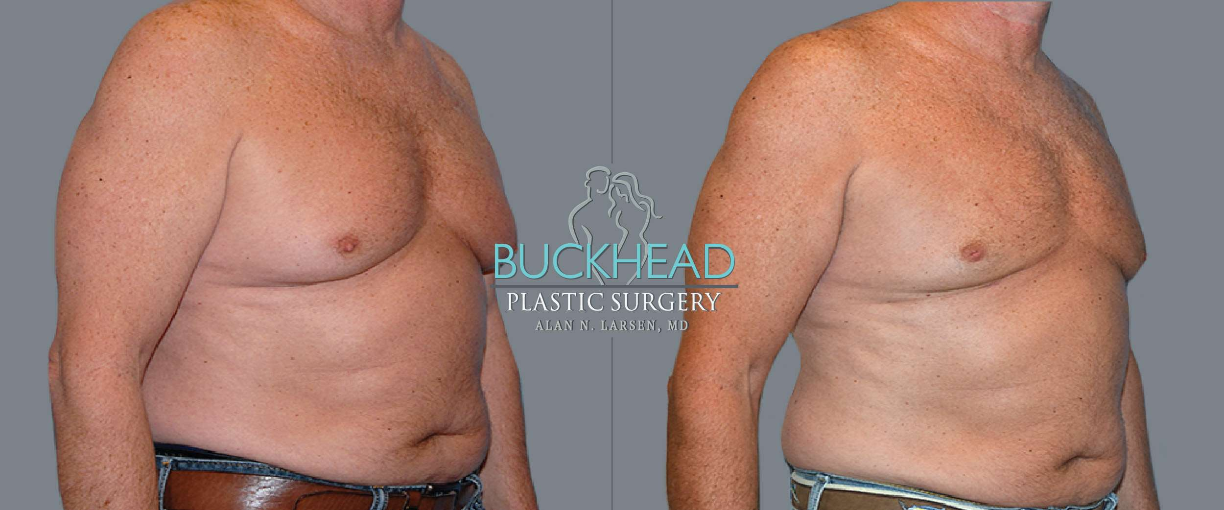 Before and After Photo Gallery | Gynecomastia - Male Breast Reduction & Correction | Buckhead Plastic Surgery | Board-Certified Plastic Surgeon in Atlanta GA