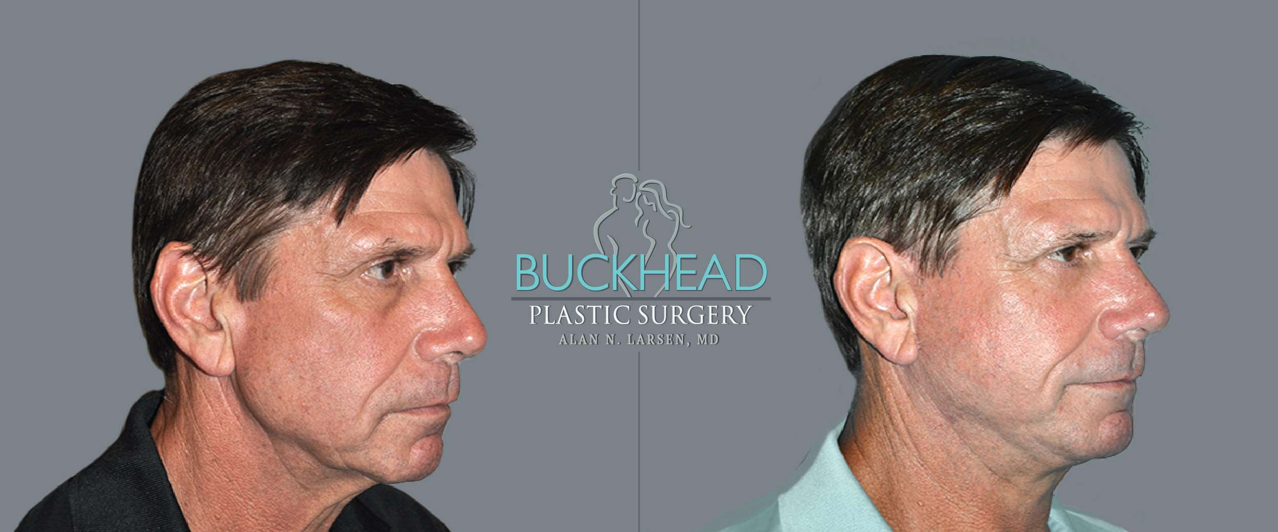 Before and After Photo Gallery | Blepharosty | Buckhead Plastic Surgery | Alan N. Larsen, MD | Board-Certified Plastic Surgeon | Atlanta GA