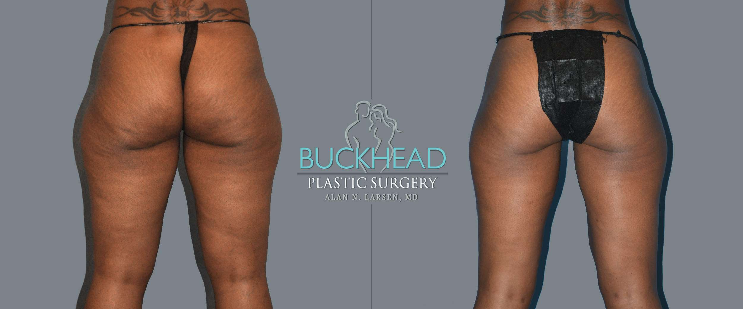 Before and After Photo Gallery | Liposuction - Thigh Front | Buckhead Plastic Surgery | Alan N. Larsen, MD | Board-Certified Plastic Surgeon | Atlanta GA