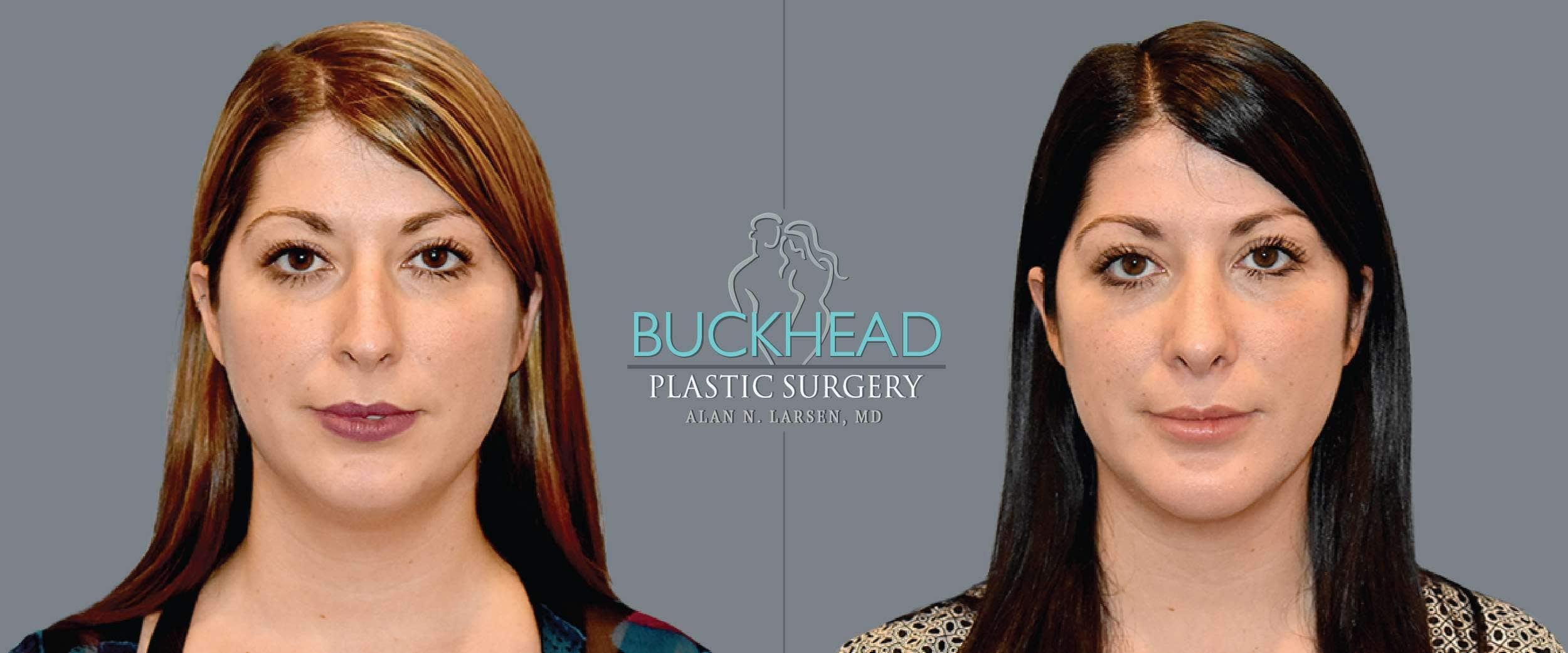 Before and After Photo gallery | Brazilian Butt Lift | Buckhead Plastic Surgery | Board-Certified Plastic Surgeon in Atlanta GA