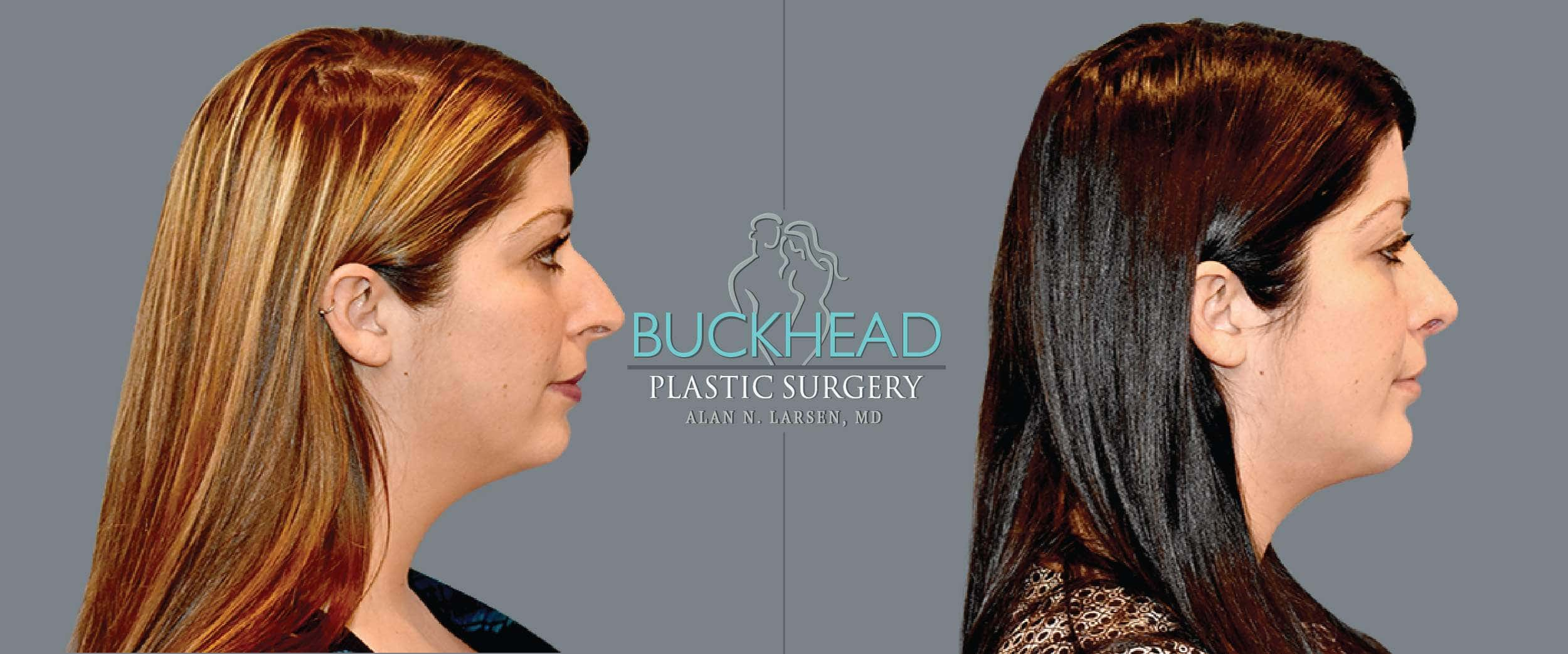 Before and After Photo gallery | Rhinoplasty | Buckhead Plastic Surgery | Board-Certified Plastic Surgeon in Atlanta GA