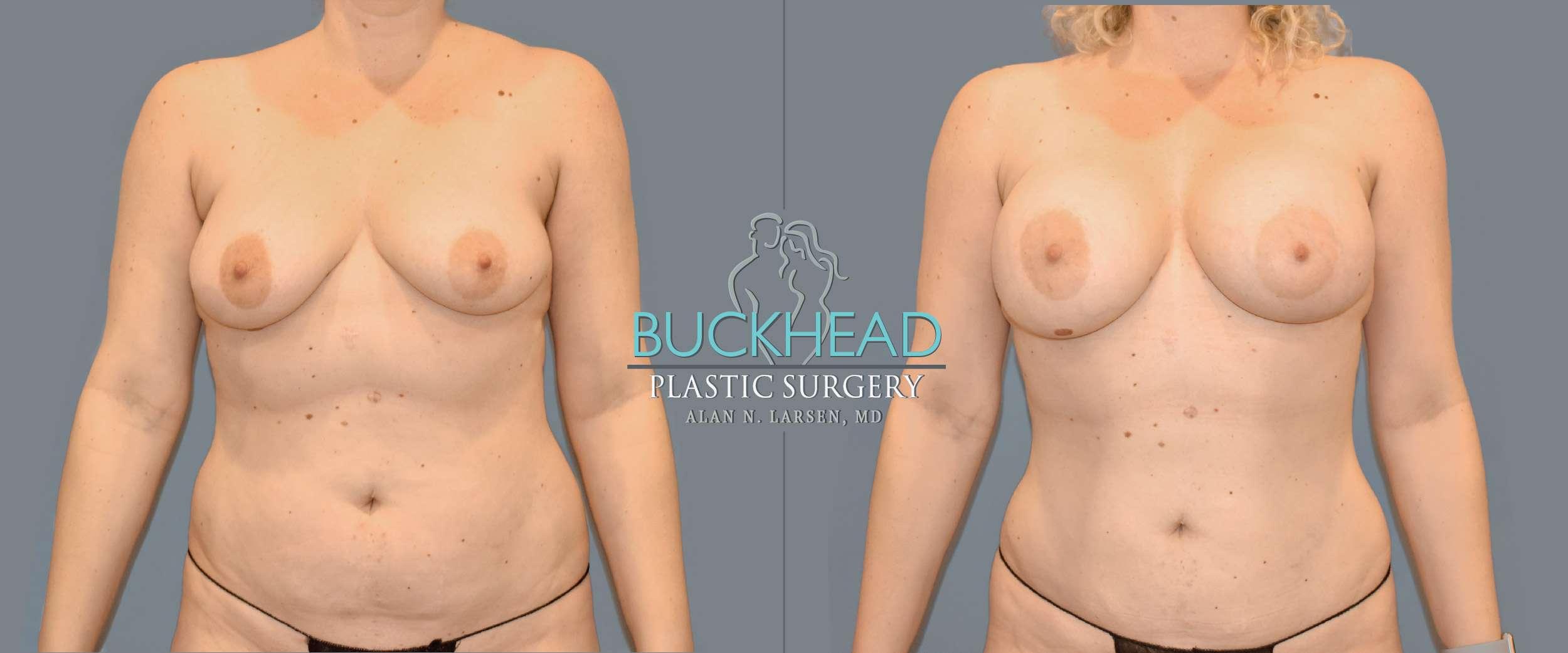 Before and After Photo Gallery | Liposuction | Buckhead Plastic Surgery | Alan N. Larsen, MD | Board-Certified Plastic Surgeon | Atlanta GA