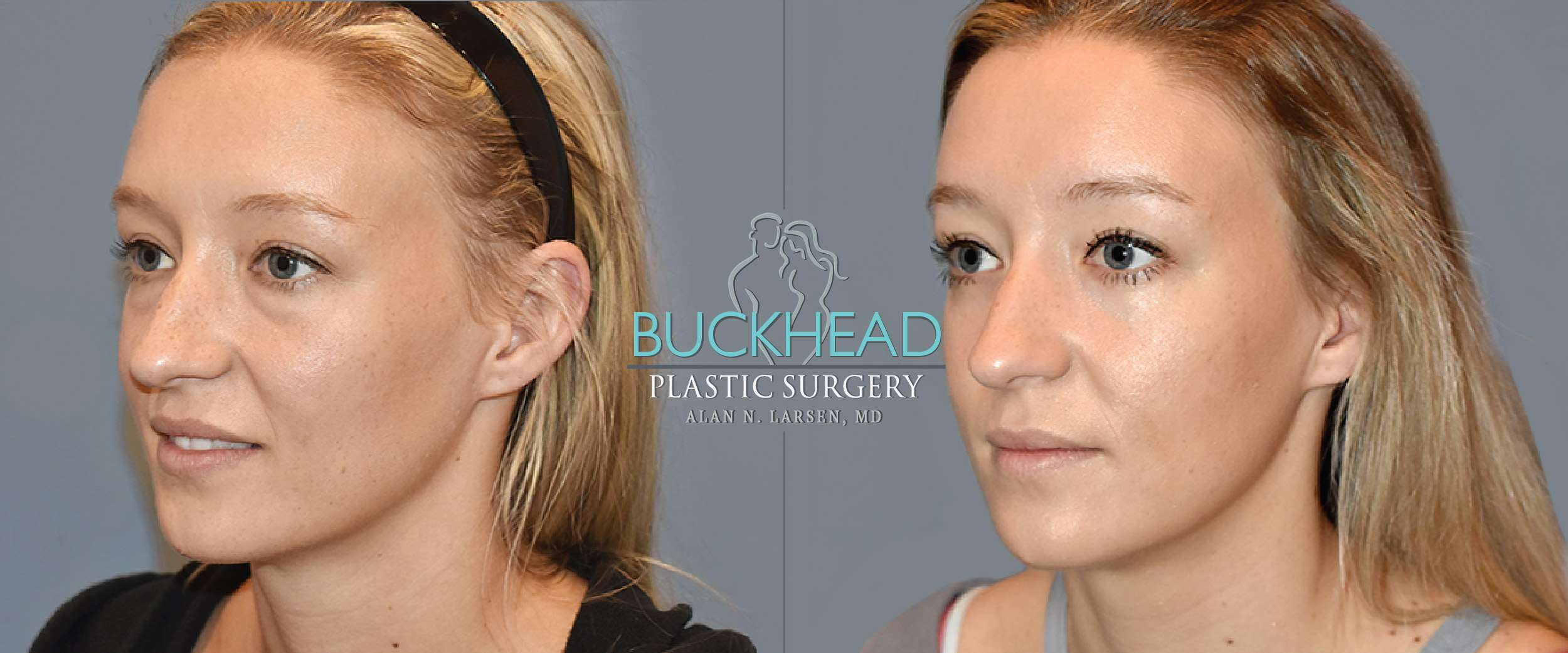 Before and After Photo Gallery | Blepharosty | Buckhead Plastic Surgery | Alan N. Larsen, MD | Board-Certified Plastic Surgeon | Atlanta GA
