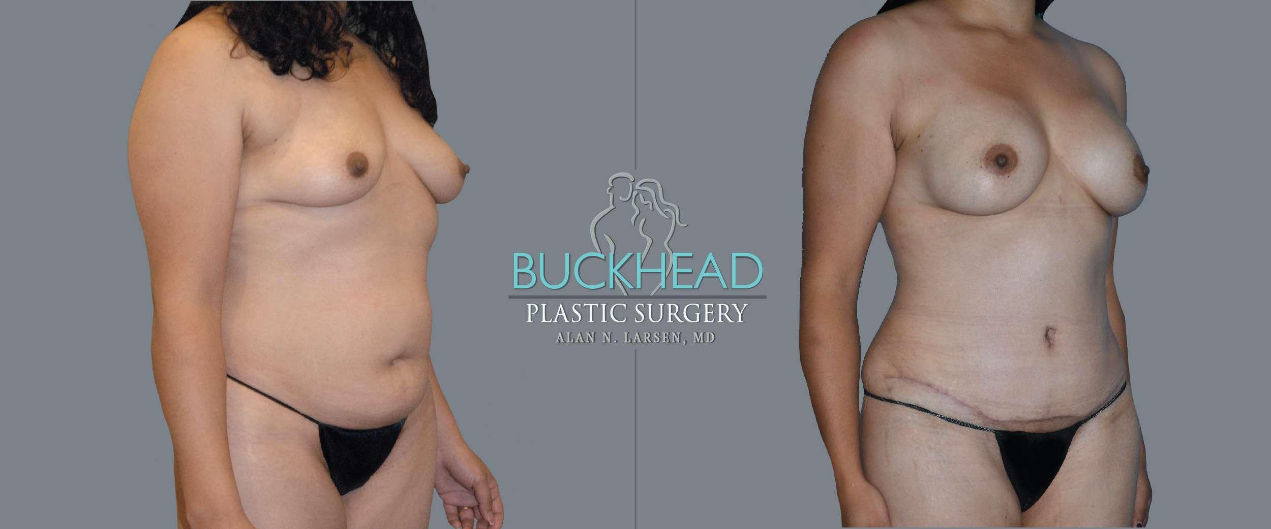 Before and After Photo Gallery | Liposuction - Hips & Flanks | Buckhead Plastic Surgery | Alan N. Larsen, MD | Board-Certified Plastic Surgeon | Atlanta GA