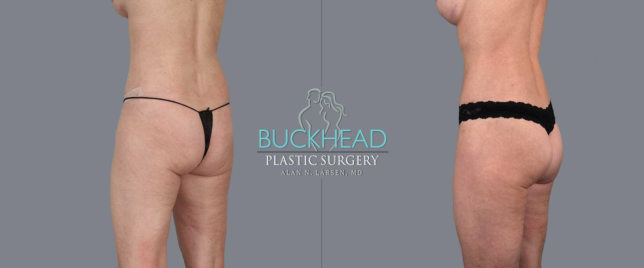 Alan N Larsen, MD, Double Board Plastic Surgeon at Buckhead Plastic Surgery