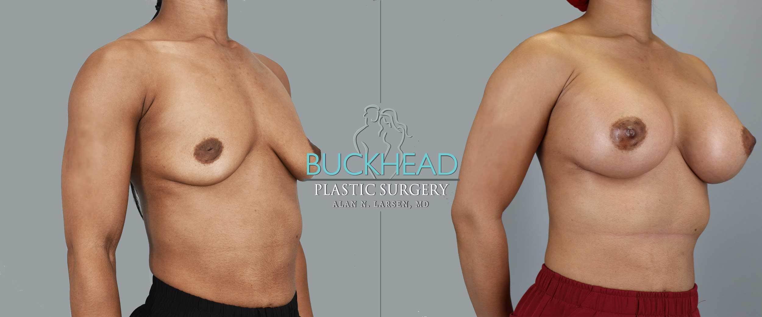 Before and After Photo Gallery | Breast Aug | Buckhead Plastic Surgery | Alan N. Larsen, MD | Board-Certified Plastic Surgeon | Atlanta GA