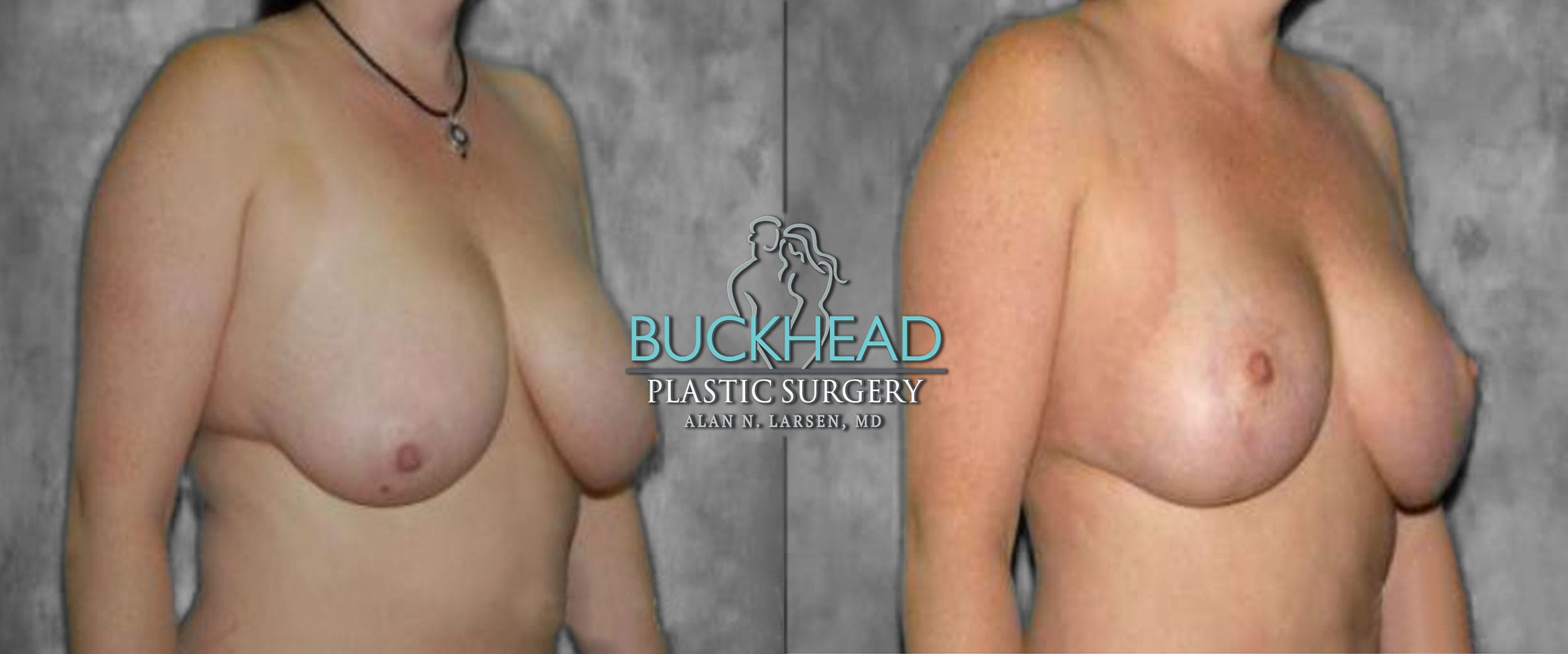 Before and After Photo Gallery | Breast Lift | Buckhead Plastic Surgery | Alan N. Larsen, MD | Board-Certified Plastic Surgeon | Atlanta GA