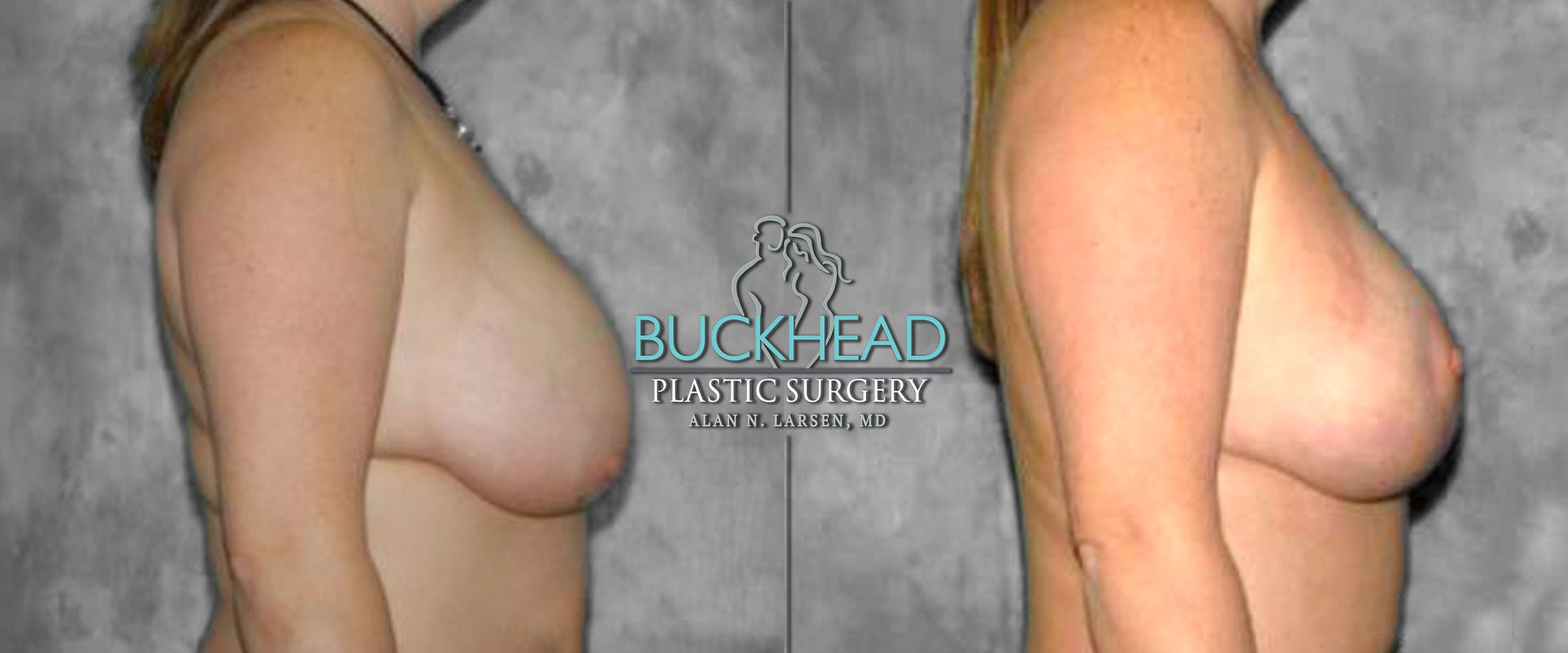 Before and After Photo Gallery   Breast Lift   Buckhead Plastic Surgery   Alan N. Larsen, MD   Board-Certified Plastic Surgeon   Atlanta GA