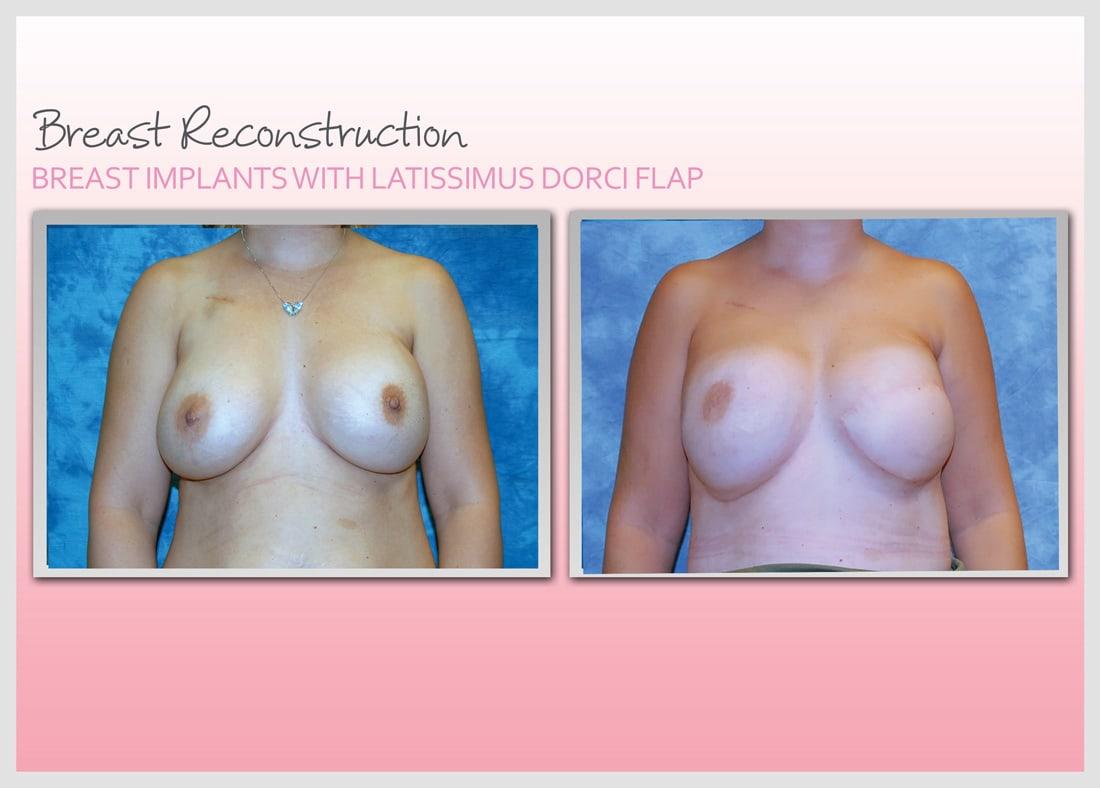 Before and After Photo Gallery   Breast Reconstruction   Buckhead Plastic Surgery   Alan N. Larsen, MD   Board-Certified Plastic Surgeon   Atlanta GA