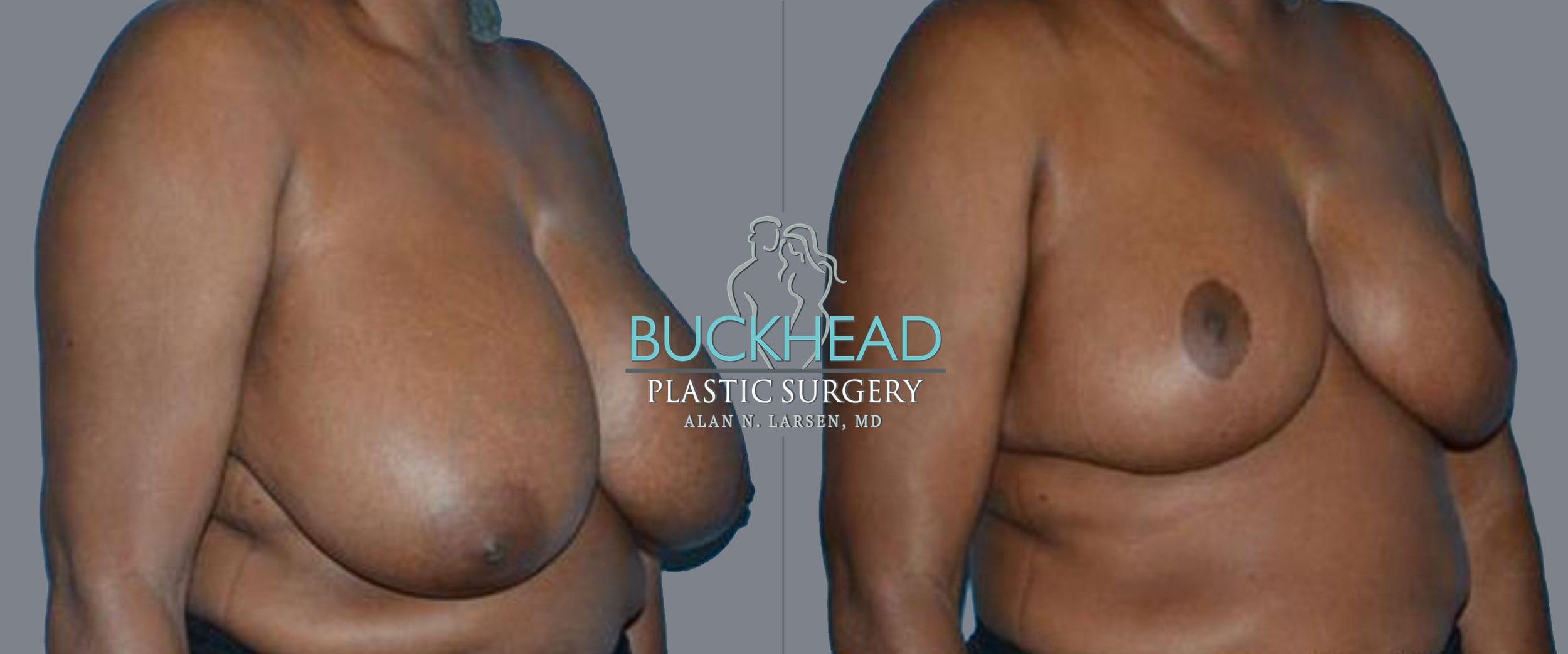 Before and After Photo Gallery | Breast Reduction | Buckhead Plastic Surgery | Alan N. Larsen, MD | Board-Certified Plastic Surgeon | Atlanta GA