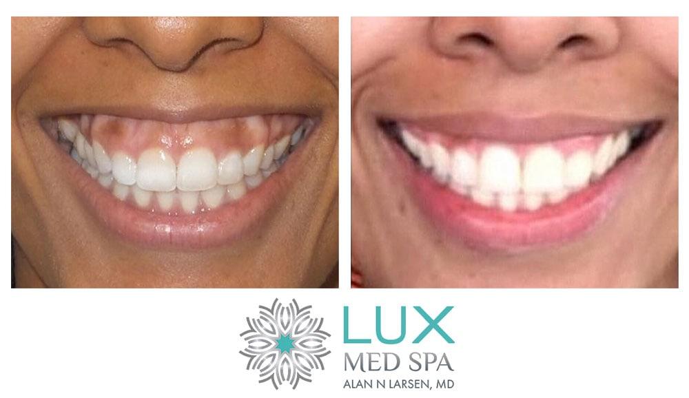 Botox Tareatment for Gummy Smile