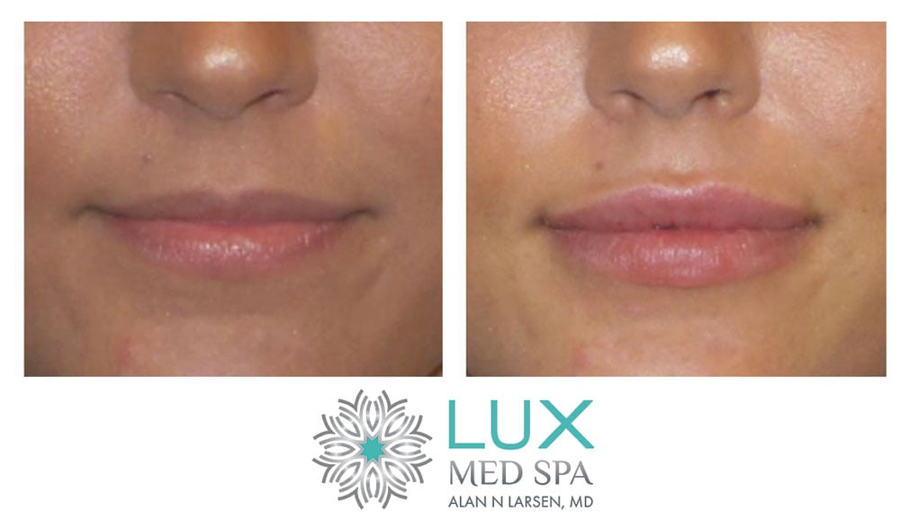 Before and After Photo Gallery | Buckhead Plastic Surgery | Board-Certified Plastic Surgeon in Atlanta GA