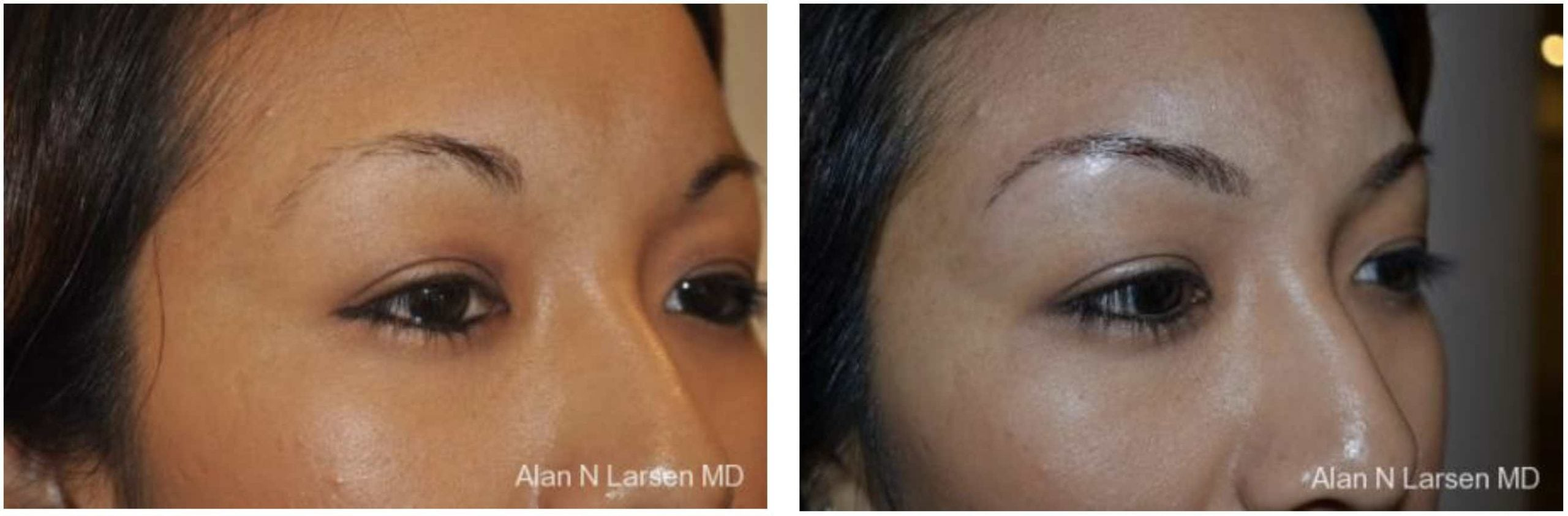 LUX Med Spa at Before and After Photo Gallery | Microblading | Buckhead Plastic Surgery | Alan N. Larsen, MD | Board-Certified Plastic Surgeon | Atlanta GA
