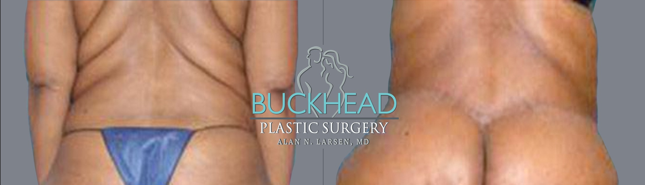 Before and After Photo Gallery | Upper Back Lift | Buckhead Plastic Surgery | Alan N. Larsen, MD | Board-Certified Plastic Surgeon | Atlanta GA