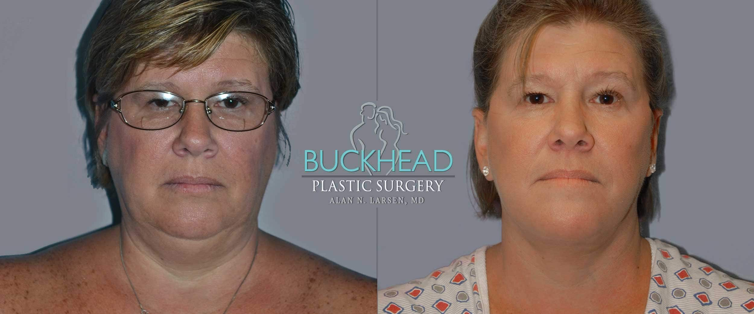 Before and After Photo Gallery | Facelift | Buckhead Plastic Surgery | Alan N. Larsen, MD | Board-Certified Plastic Surgeon | Atlanta GA