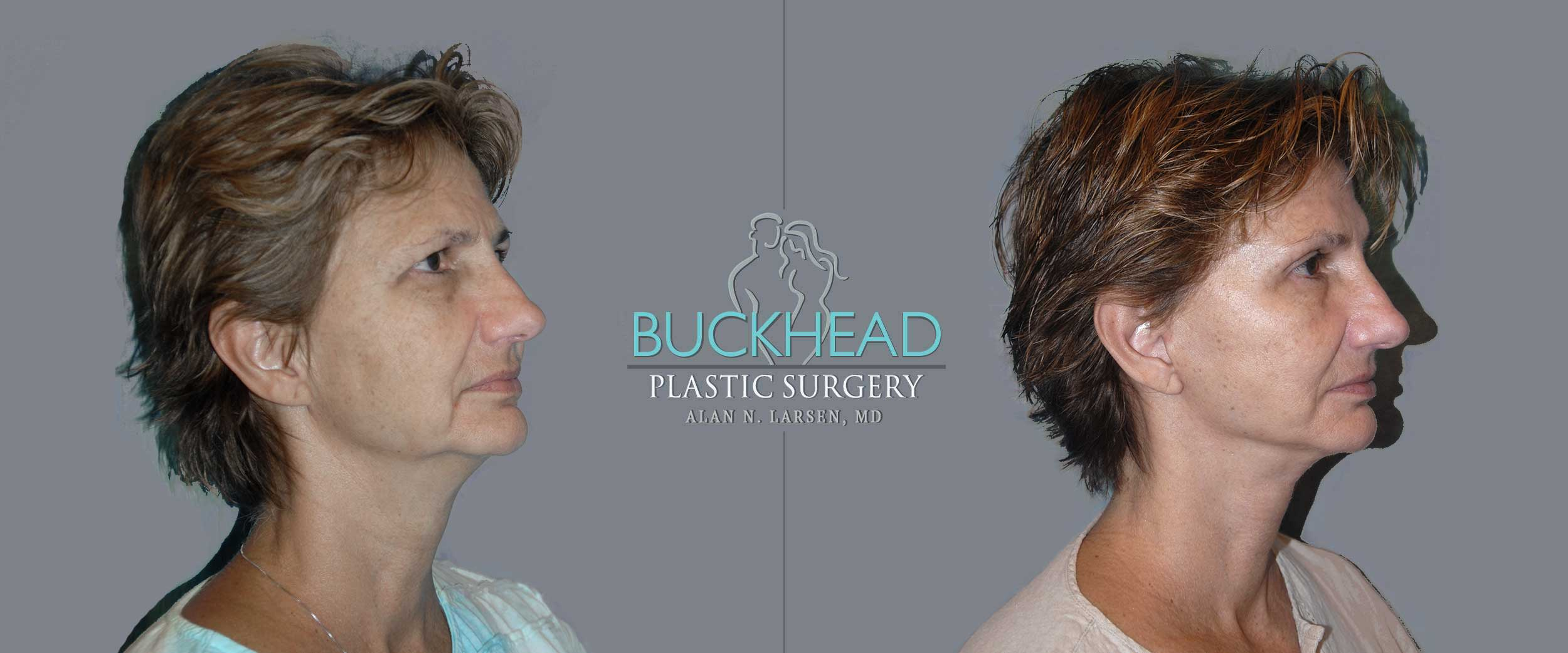 Before and After Photo Gallery | Mini Facelift | Buckhead Plastic Surgery | Alan N. Larsen, MD | Board-Certified Plastic Surgeon | Atlanta GA