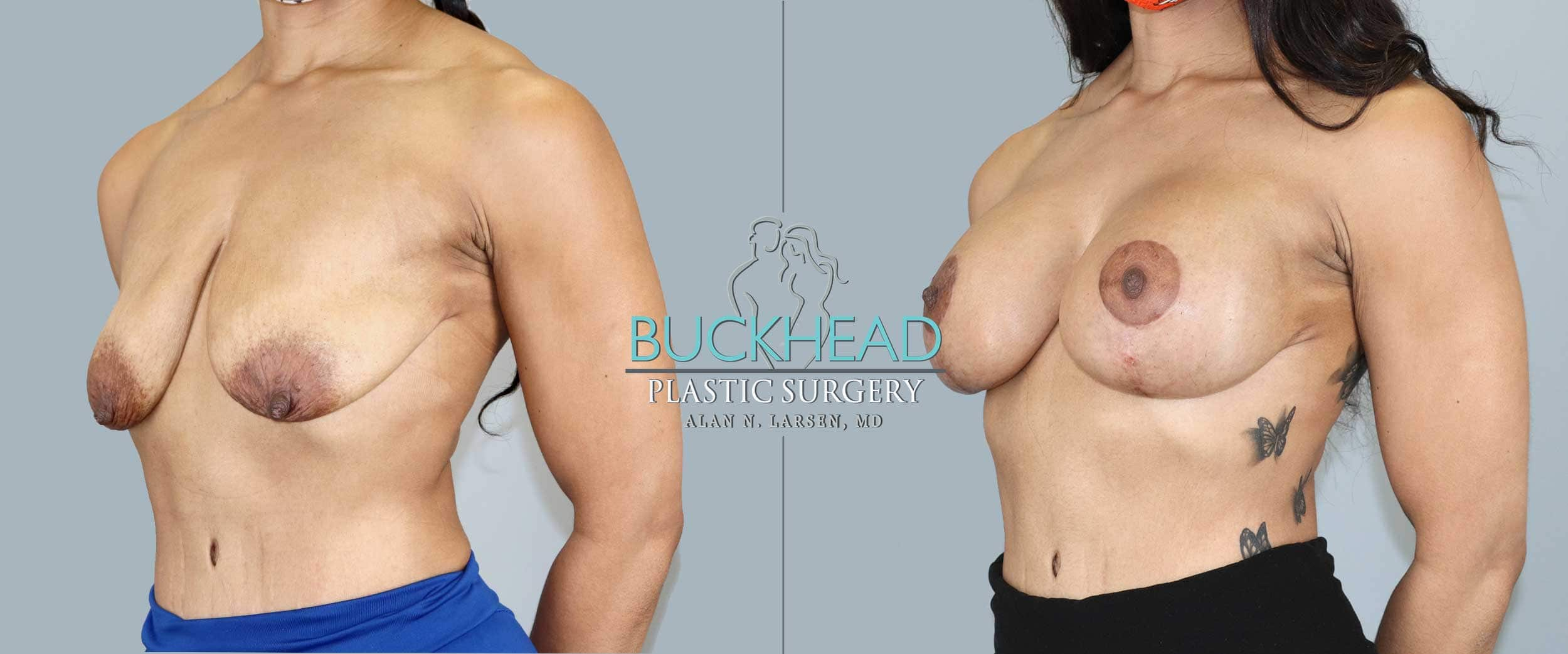 Before and After Photo Gallery | Breast Lift with Augmentation | Buckhead Plastic Surgery | Alan N. Larsen, MD | Board-Certified Plastic Surgeon | Atlanta GA