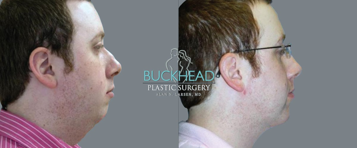 buckhead plastic surgery procedure alan n larsen dr md