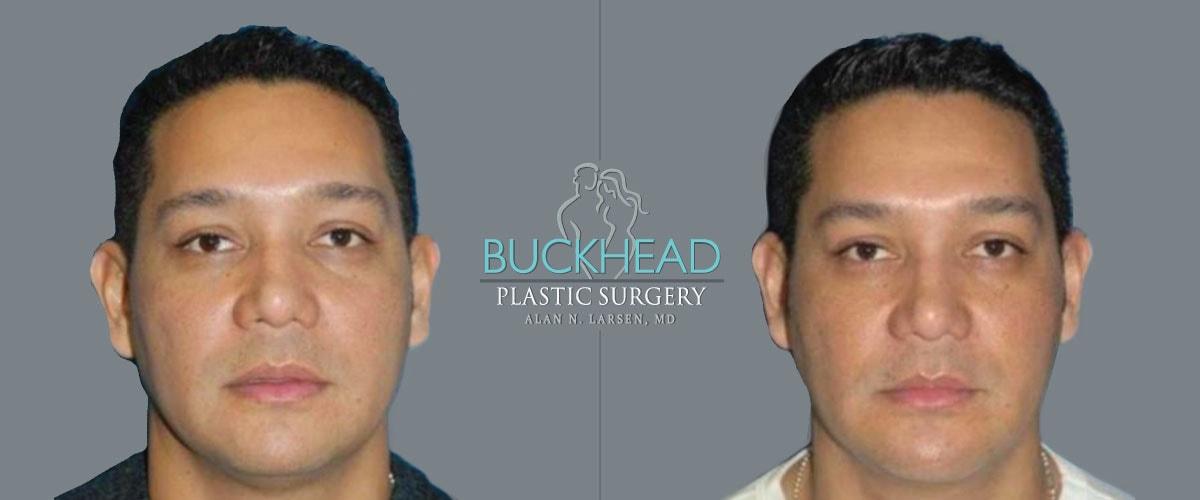 buckhead plastic surgery procedure alan n larsen dr md