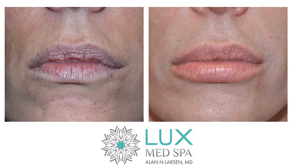 Before and After Photo Gallery | Dermal Fillers - Juvéderm® | LUX Med Spa at Buckhead Plastic Surgery | Alan N. Larsen, MD | Board-Certified Plastic Surgeon | Atlanta GA