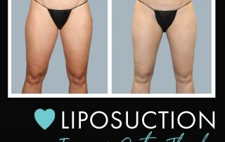 Before-and-After-Photo-Gallery-liposuction-Buckhead-Plastic-Surgery-Alan-N.-Larsen,-MD-Board-Certified-Plastic-Surgeon-Atlanta-GA-Inner-Thighs-Front
