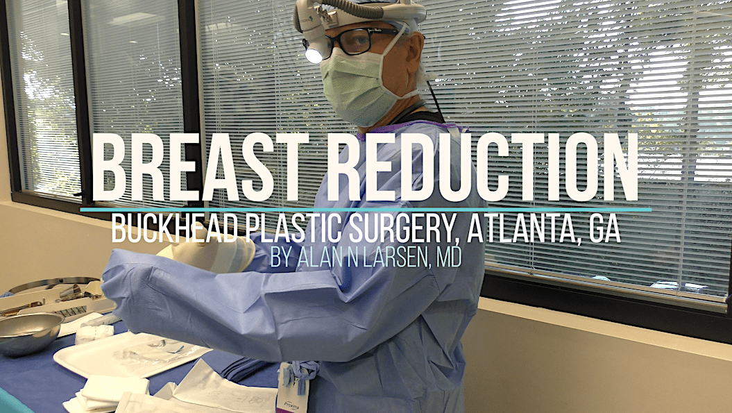Before and After Photo Results | Breast Reduction | Buckhead Plastic Surgery | Board-Certified Plastic Surgeon in Atlanta GA