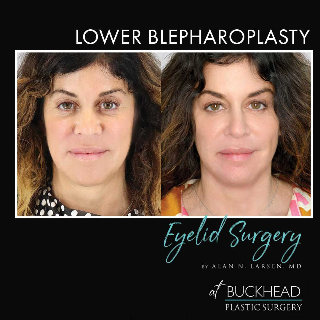 Surgery Video Lower Blepharoplasty Eyelid Surgery by Dr Alan N Larsen at Buckhead Plastic Surgery