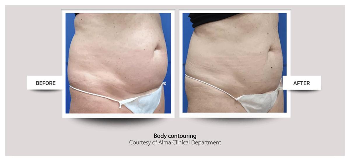 Accent Prime™ skin tightening, body contouring fast painless easy at Buckhead Plastic Surgery Atlanta GA