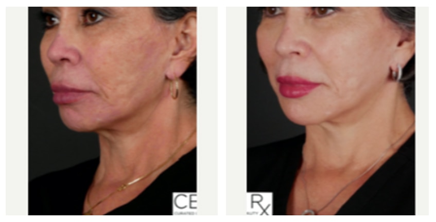 Opus Plasma at Buckhead Plastic Surgery in Atlanta offers visible results after as few as one treatment