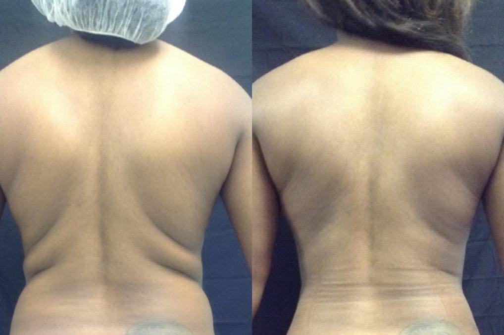 Beautifill Fat Transfer Lipo System by Alma Lasers at Buckhead Plastic Surgery Alan N Larsen, MD in Atlanta GA