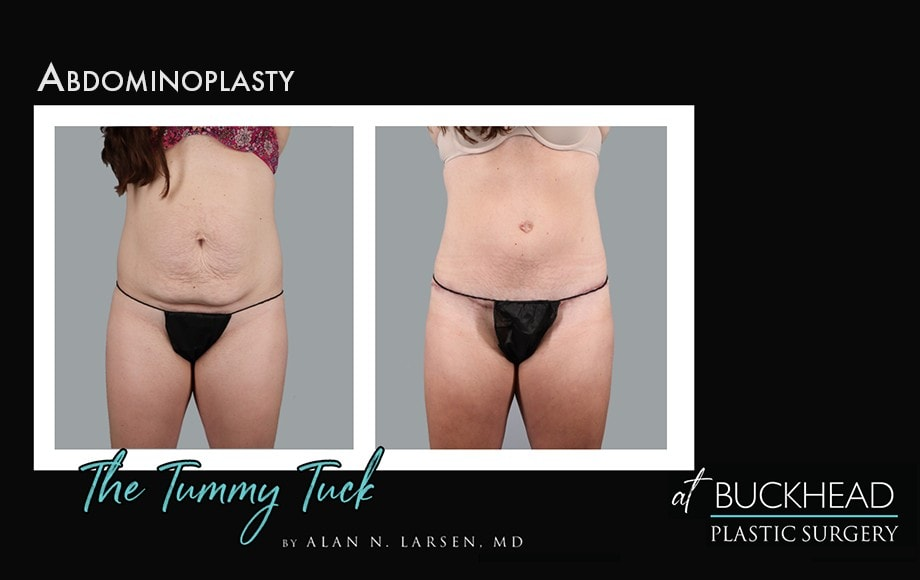 Before and After Photo Gallery | Tummy Tuck | Buckhead Plastic Surgery | Alan N. Larsen, MD | Board-Certified Plastic Surgeon | Atlanta GA