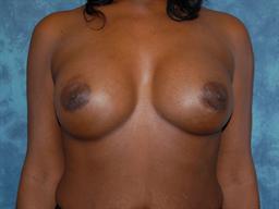 Breast Augmentation   Buckhead Plastic Surgery   Board-Certified Plastic Surgeon in Atlanta GA