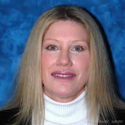 Eyelid Surgery | Buckhead Plastic Surgery | Board-Certified Plastic Surgeon in Atlanta GA