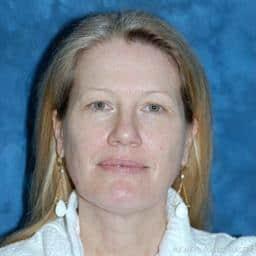 Eyelid Surgery   Buckhead Plastic Surgery   Board-Certified Plastic Surgeon in Atlanta GA