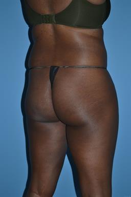 Liposuction   Buckhead Plastic Surgery   Board-Certified Plastic Surgeon in Atlanta GA