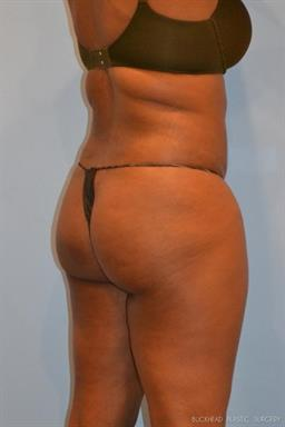 Liposuction | Buckhead Plastic Surgery | Board-Certified Plastic Surgeon in Atlanta GA